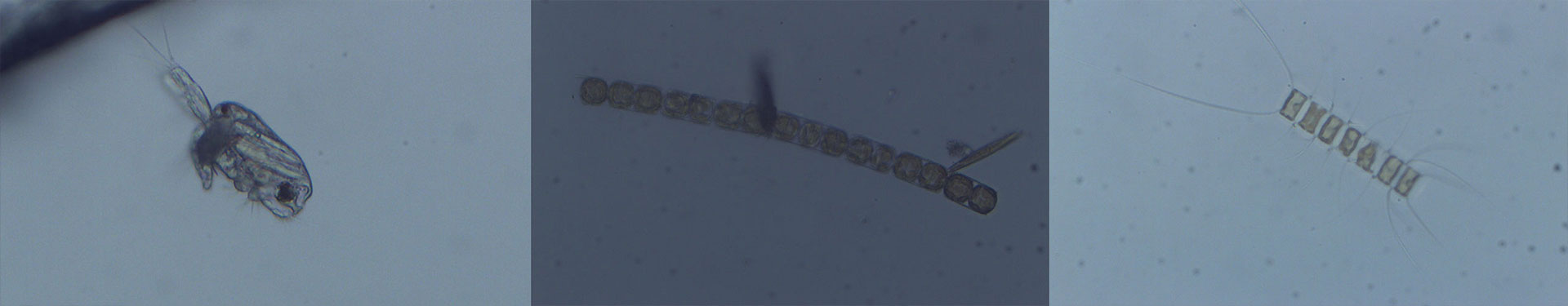 Tulalip Natural Resources Department image of microscopic organism